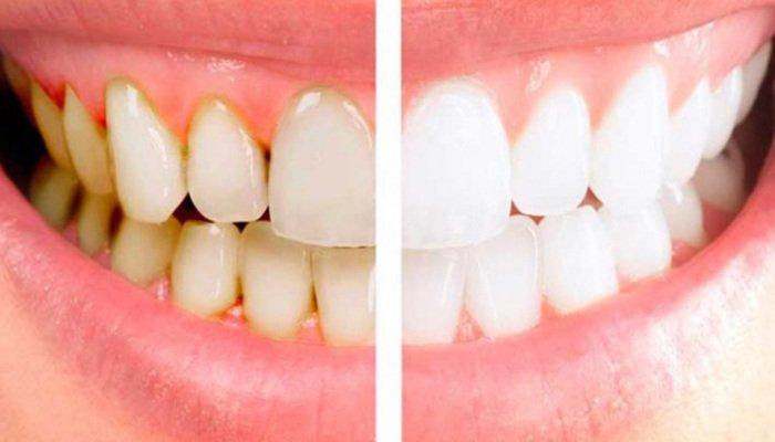 Снятие зубных отложений в Оренбурге