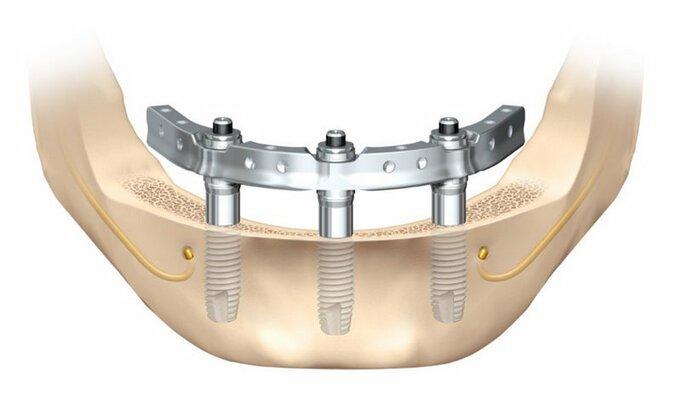 Cистема протезирования зубов Trefoil в Оренбурге