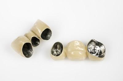 Протез из металлокерамики